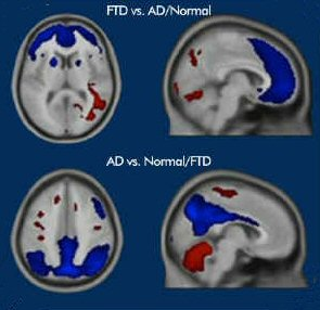 Brain Scan 2