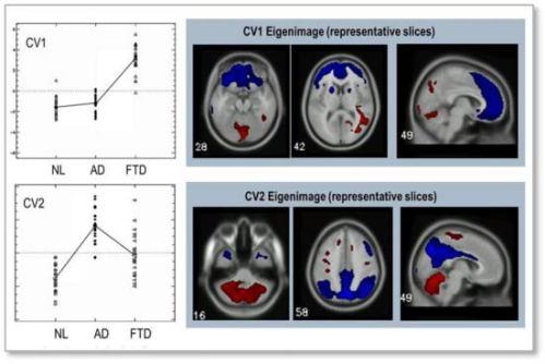 Fingerprints in the Brain