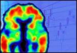 brain scan 4