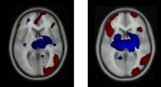 brain scan 6